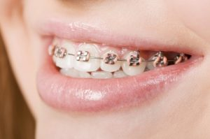 Affordable braces in Houston