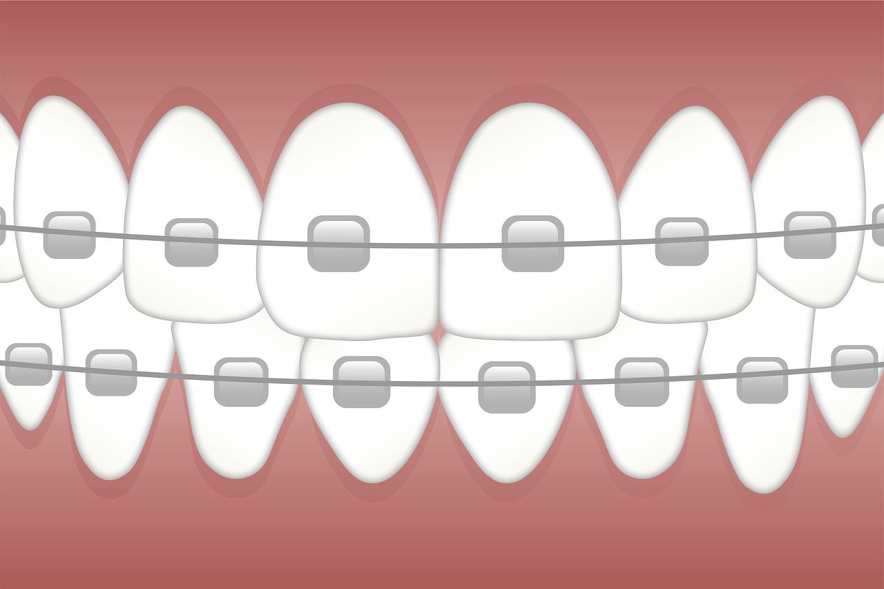 cheap braces houston
